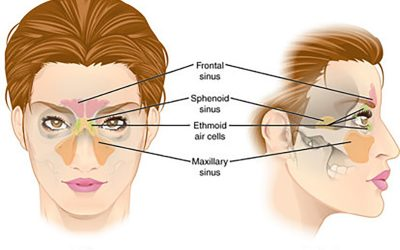Osteopathic treatment of sinus problems