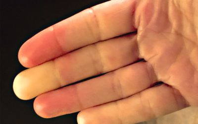 Suffering from Raynaud's disease?